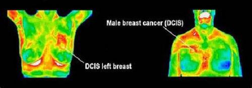 MensHealthScreening