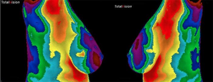 breastscan_left_right