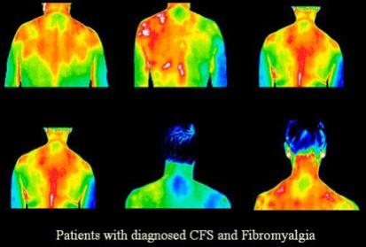 fibromyalgia pain screening